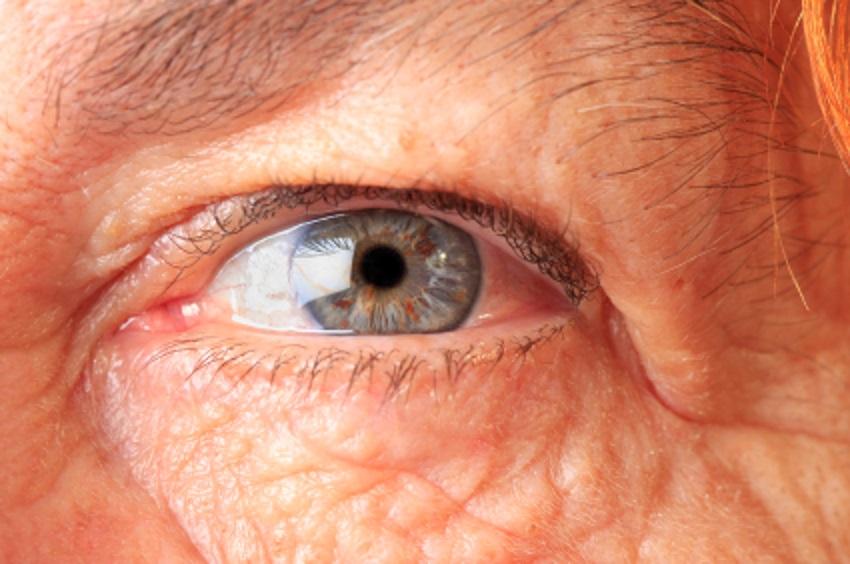 Una patología ocular que ahora tiene un tratamiento más efectivo.