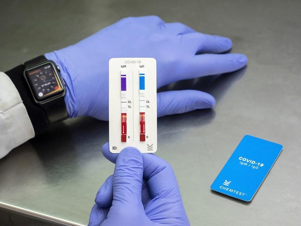 CHEMTEST es una empresa biotecnológica argentina que desarrolla test diagnósticos de enfermedades infecciosas.